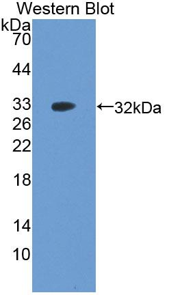 Polyclonal Antibody to Apoptosis Signal Regulating Kinase 1 (ASK1)