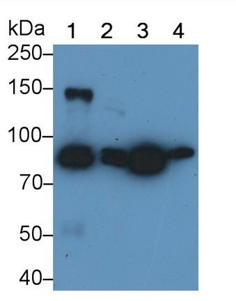 Polyclonal Antibody to Cadherin 5 (CDH5)