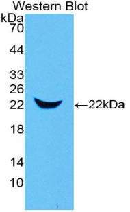 Polyclonal Antibody to Neutrophil gelatinase-associated lipocalin (NGAL)