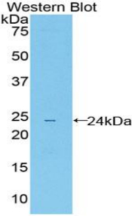 Polyclonal Antibody to Leukocyte Immunoglobulin Like Receptor Subfamily B, Member 4 (LILRB4)