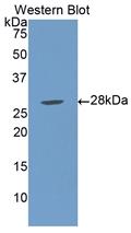 Polyclonal Antibody to Lipopolysaccharide Binding Protein (LBP)