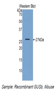 Polyclonal Antibody to Glucuronidase Beta (GUSb)