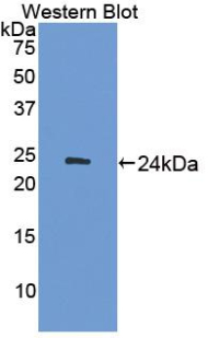 Polyclonal Antibody to Adenylate Cyclase 7 (ADCY7)