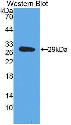 Polyclonal Antibody to Dopamine Beta Hydroxylase (DbH)