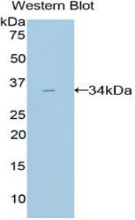 Polyclonal Antibody to Amylase, Alpha 2A (AMY2A)