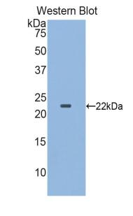 Polyclonal Antibody to Colony Stimulating Factor Receptor, Granulocyte (GCSFR)