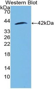 Polyclonal Antibody to Matrix Gla Protein (MGP)