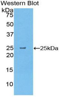 Polyclonal Antibody to Pancreatic Elastase 1 (ELA1)