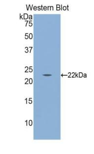 Polyclonal Antibody to Calreticulin (CALR)