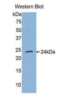 Polyclonal Antibody to Tumor Necrosis Factor Receptor 1 (TNFR1)