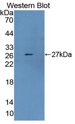Polyclonal Antibody to Dystrophin (DMD)