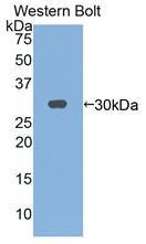 Polyclonal Antibody to Interleukin 2 Receptor Gamma (IL2Rg)