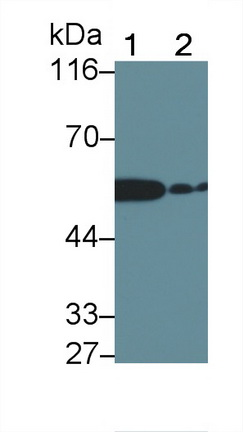 Polyclonal Antibody to Interleukin 1 Receptor Associated Kinase 2 (IRAK2)