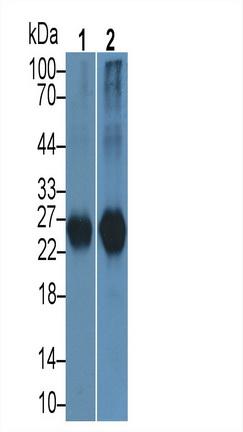 Polyclonal Antibody to Protease, Serine 2 (PRSS2)