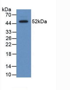 Polyclonal Antibody to Serum Amyloid P Component (SAP)