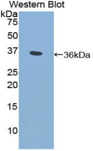 Polyclonal Antibody to Cytochrome P450 Family 21 Subfamily A Member 2 (CYP21A2)