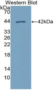 Polyclonal Antibody to Chemokine (C-X-C Motif) Ligand 14 (CXCL14)