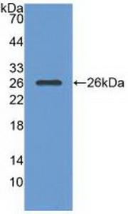 Polyclonal Antibody to Ras GTPase Activating Protein 1 (RASA1)