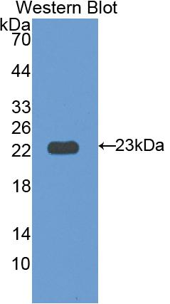 Polyclonal Antibody to Interleukin 12 Receptor Beta 1 (IL12Rb1)