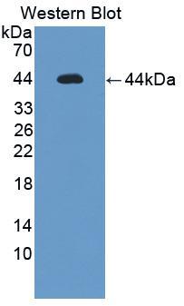Polyclonal Antibody to Interleukin 12 Receptor Beta 1 (IL12Rb1)