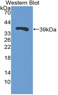 Polyclonal Antibody to Trefoil Factor 3, Intestinal (TFF3)