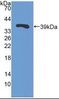 Polyclonal Antibody to Trefoil Factor 3, Intestinal (TFF3)