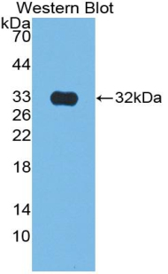 Polyclonal Antibody to Citrate Synthase (CS)