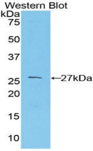 Polyclonal Antibody to Prion Protein (PRNP)