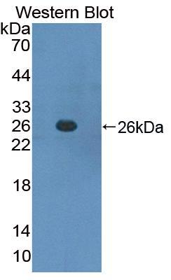 Polyclonal Antibody to Suppressors Of Cytokine Signaling 3 (SOCS3)