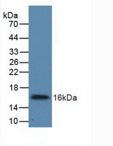 Polyclonal Antibody to UDP Glucose Ceramide Glucosyltransferase (UGCG)
