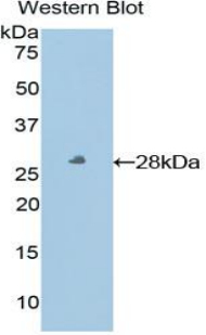 Polyclonal Antibody to Major Histocompatibility Complex Class I E (MHCE)