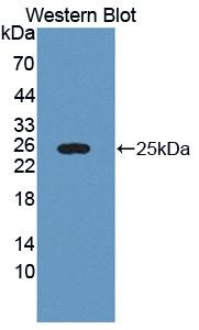 Polyclonal Antibody to Lectin Galactoside Binding, Soluble 3 Binding Protein (LGALS3BP)