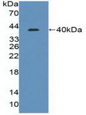 Polyclonal Antibody to Interferon Regulatory Factor 8 (IRF8)