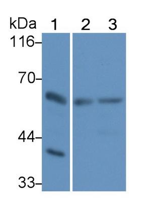 Polyclonal Antibody to Receptor Interacting Serine Threonine Kinase 2 (RIPK2)