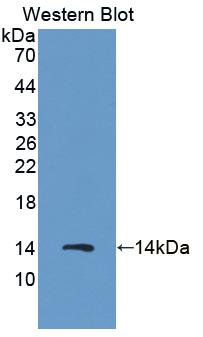 Polyclonal Antibody to S100 Calcium Binding Protein A8 (S100A8)
