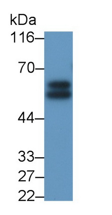 Polyclonal Antibody to Interleukin 6 Receptor (IL6R)