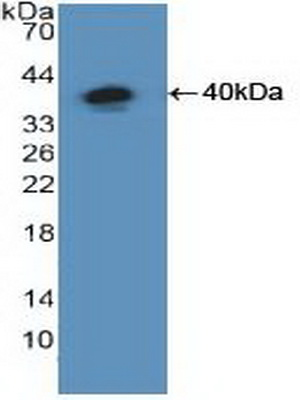 Polyclonal Antibody to Nuclear Factor Kappa B (NFkB)