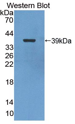 Polyclonal Antibody to Nuclear Factor Kappa B2 (NFkB2)