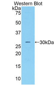 Polyclonal Antibody to Complement Factor D (CFD)