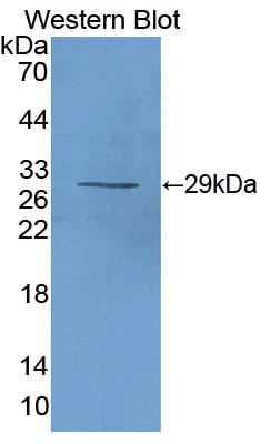 Polyclonal Antibody to Interleukin 2 Receptor Alpha (IL2Ra)
