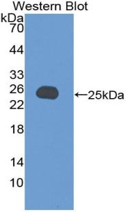 Polyclonal Antibody to Vinculin (VCL)