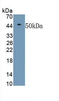 Polyclonal Antibody to Matrix Metalloproteinase 19 (MMP19)