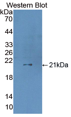 Polyclonal Antibody to Coagulation Factor VII (F7)