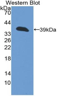 Polyclonal Antibody to Cytokeratin 13 (CK13)