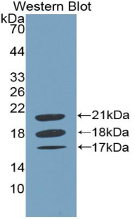 Polyclonal Antibody to Coagulation Factor VIII (F8)