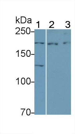 Polyclonal Antibody to Vascular Endothelial Growth Factor Receptor 3 (VEGFR3)