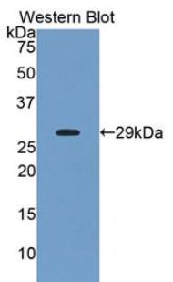 Polyclonal Antibody to Angiopoietin Like Protein 2 (ANGPTL2)