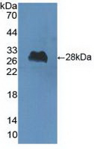 Polyclonal Antibody to Choline Acetyltransferase (ChAT)