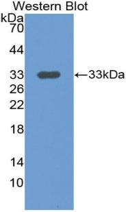 Polyclonal Antibody to Leucine Rich Alpha-2-Glycoprotein 1 (LRG1)
