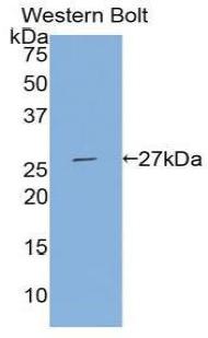 Polyclonal Antibody to Tissue Factor Pathway Inhibitor 2 (TFPI2)